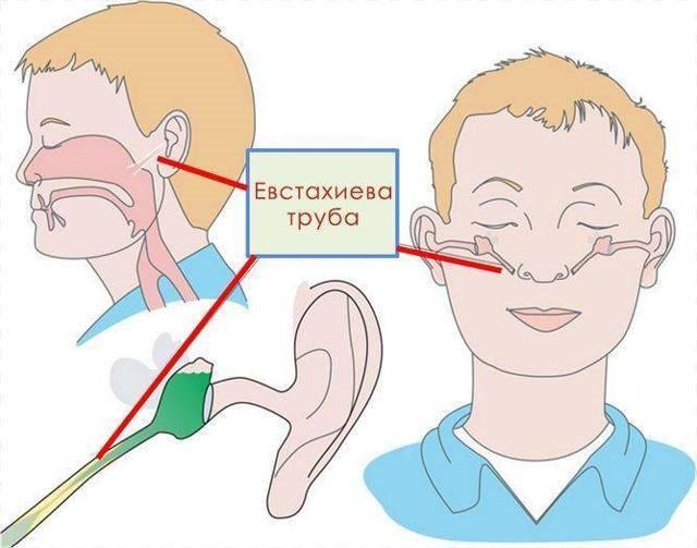 После сна болит голова закладывает уши