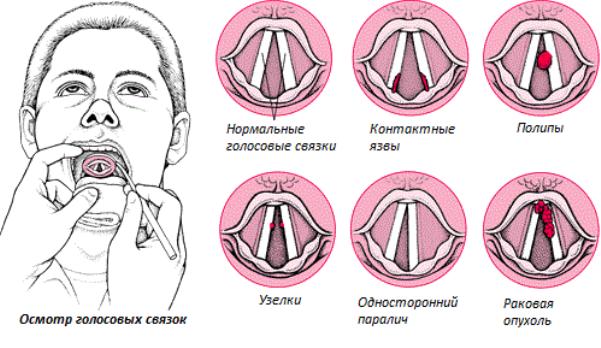 В чём причина потери голоса и методы лечения патологии