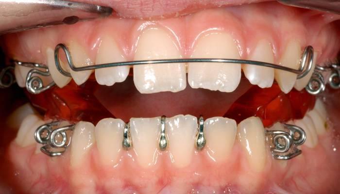 Установка скоб для выравнивания зубов