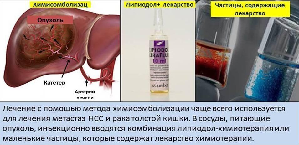 Восстановление и защита печени при химиотерапии