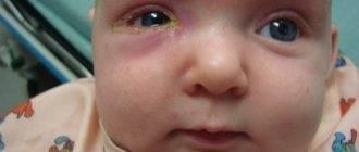 У младенца гноятся глазки: основные причины и способы помощи