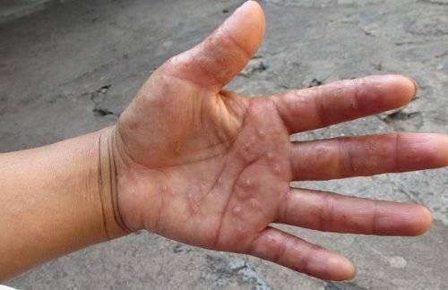 Дерматит заразен ли для другого ребенка