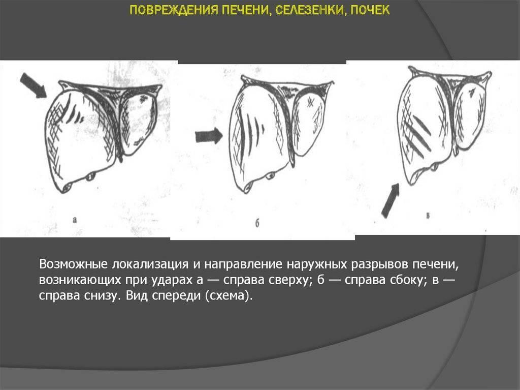 Гематома печени (ушиб): понятие, причины и последствия