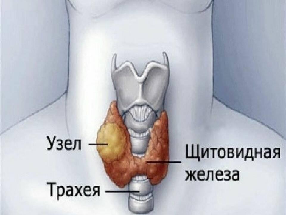 коллоидный узел на щитовидке