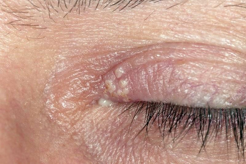 Герпес на глазу: причины, симптомы и лечение вируса