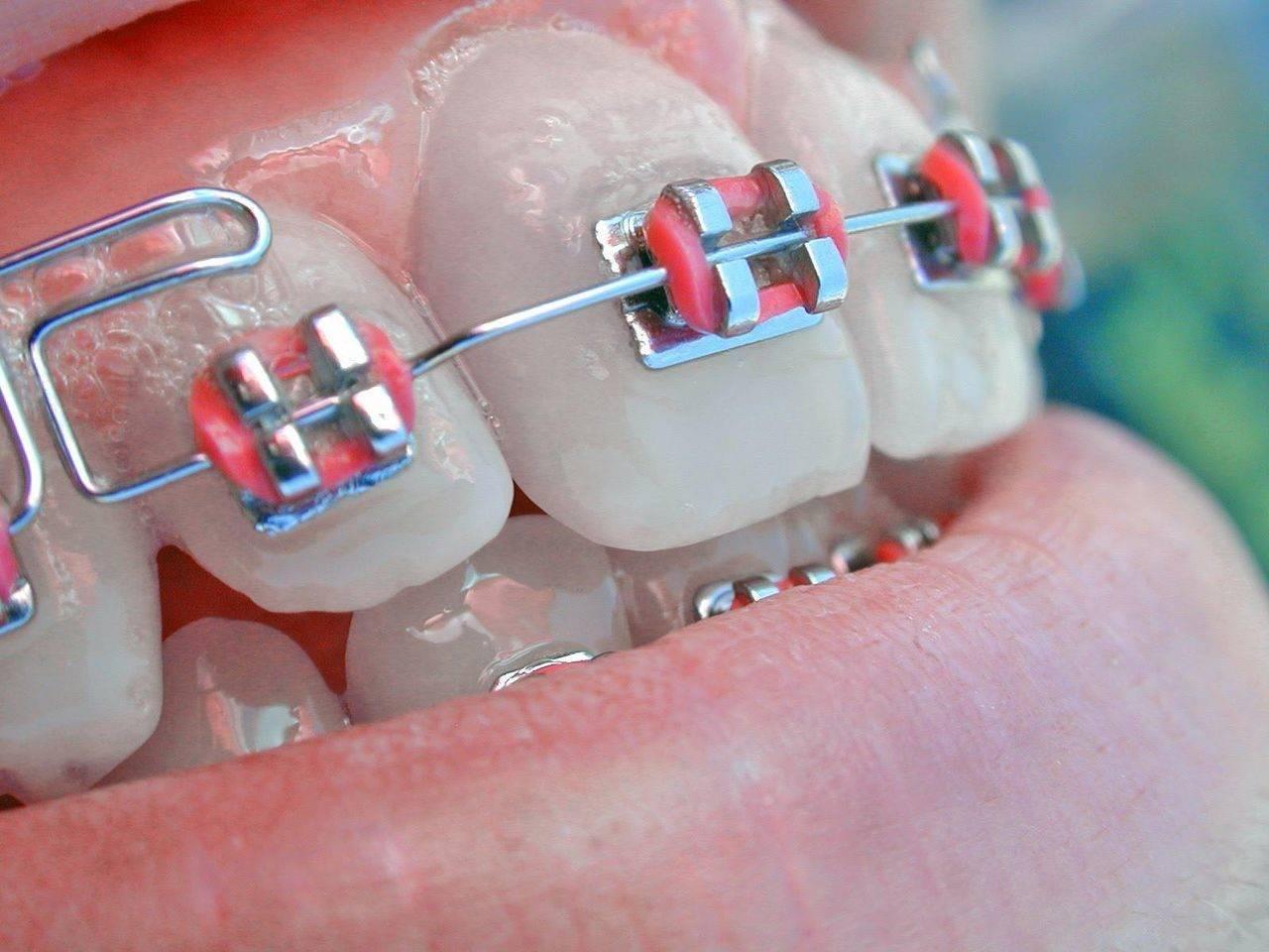 Сколько стоят скобы на зубы, от чего зависит цена