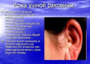 Сильно болит ухо ушная раковина