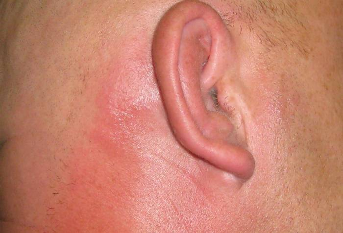 Стафилококк на коже – признаки, лечение стафилококка народными средствами, препараты от стафилококка. анализ на золотистый стафилококк