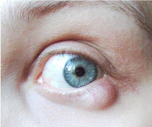 киста на нижнем веке глаза лечение