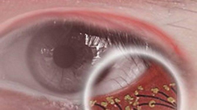 Как проводить лечение глазного клеща в домашних условиях