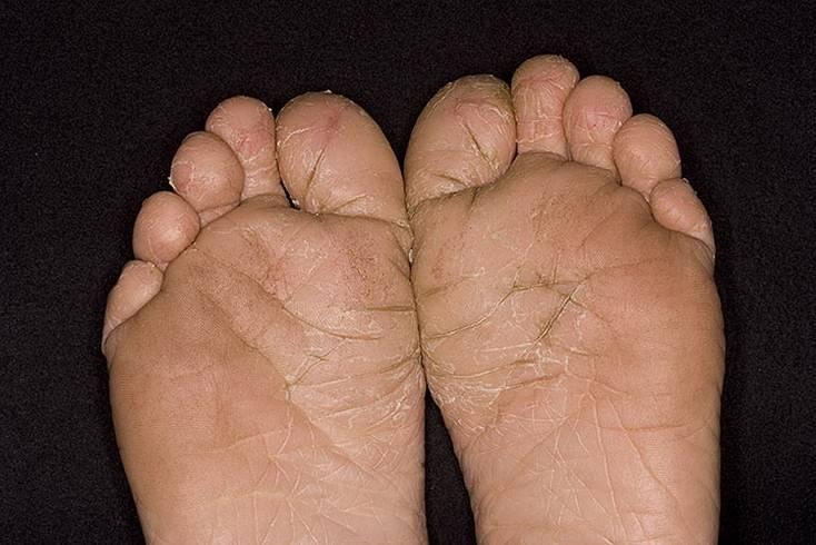 Дерматит на ногах — симптомы, диагностика, лечение и профилактика