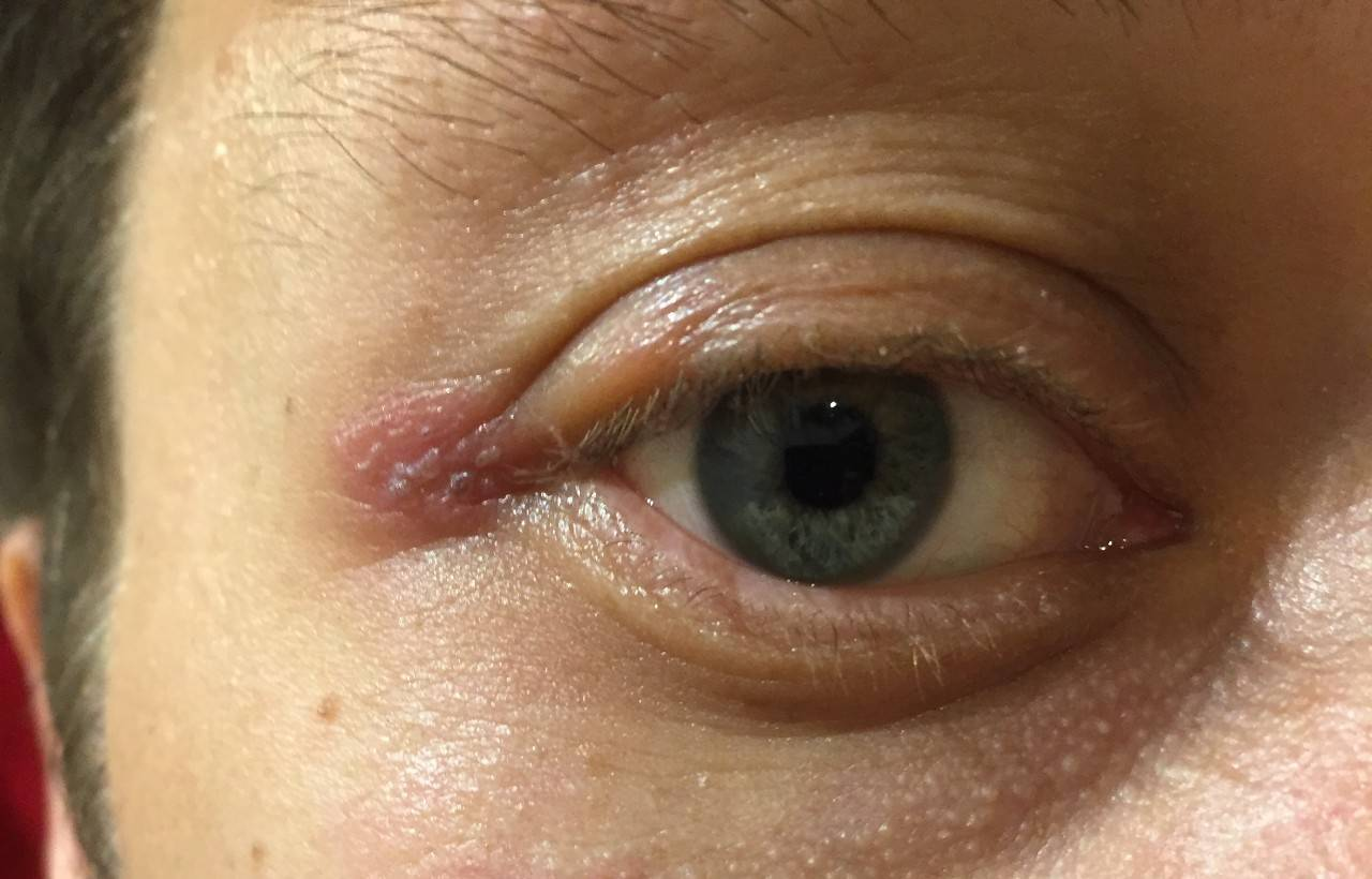 Желтые пятна на веках глаз