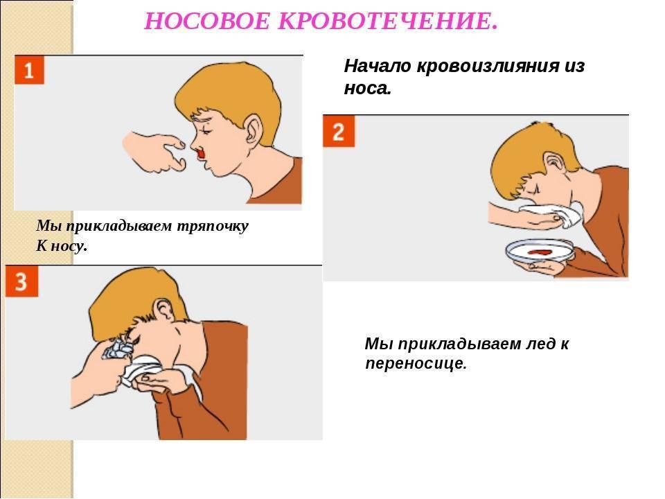 кровотечение из носа при высоком давлении