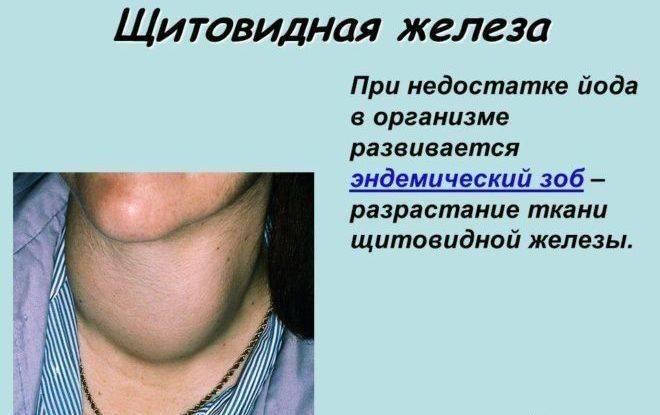 Аденоматозный зоб щитовидной железы что это такое