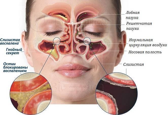 болят носовые пазухи что делать