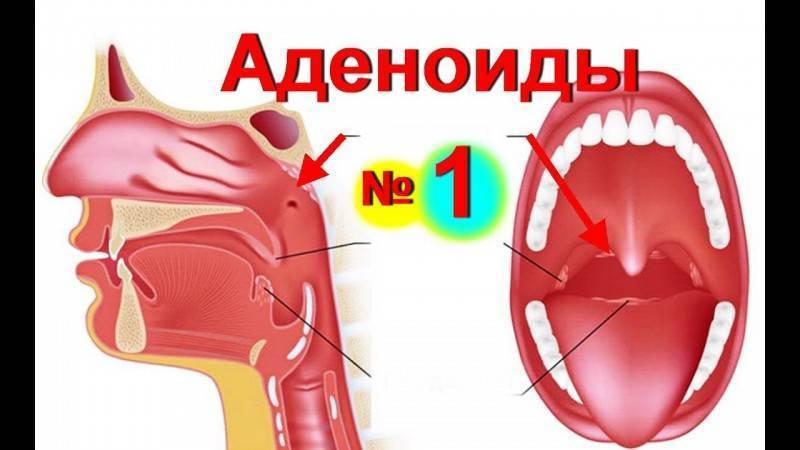 аденоиды 3 степени у ребенка 3 лет