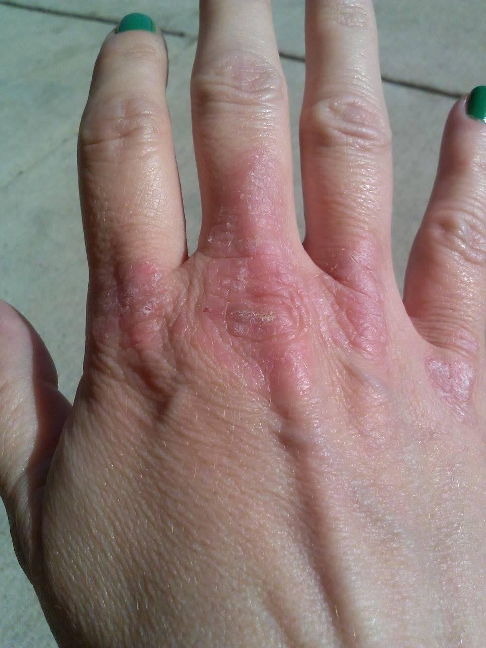 псориаз между пальцами рук