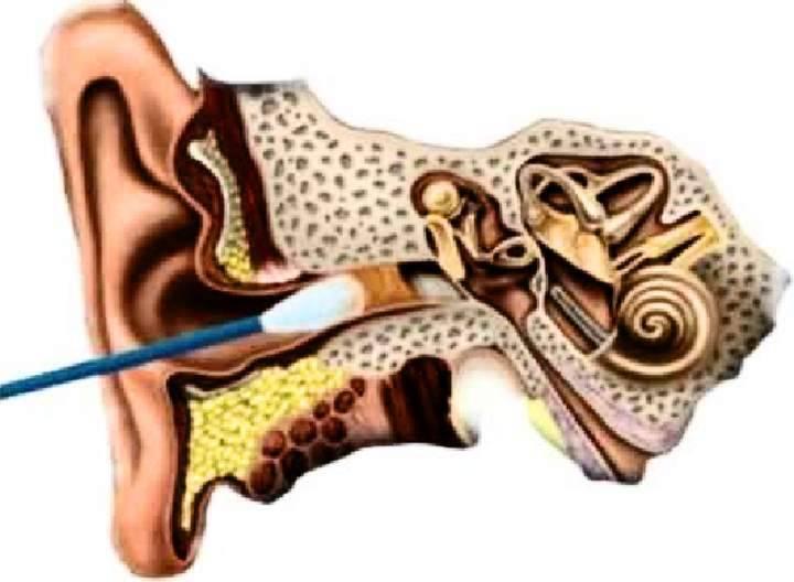 кровь из уха после чистки ватной палочкой