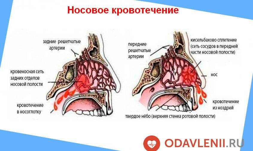 Внезапное носовое кровотечение: причины у взрослых