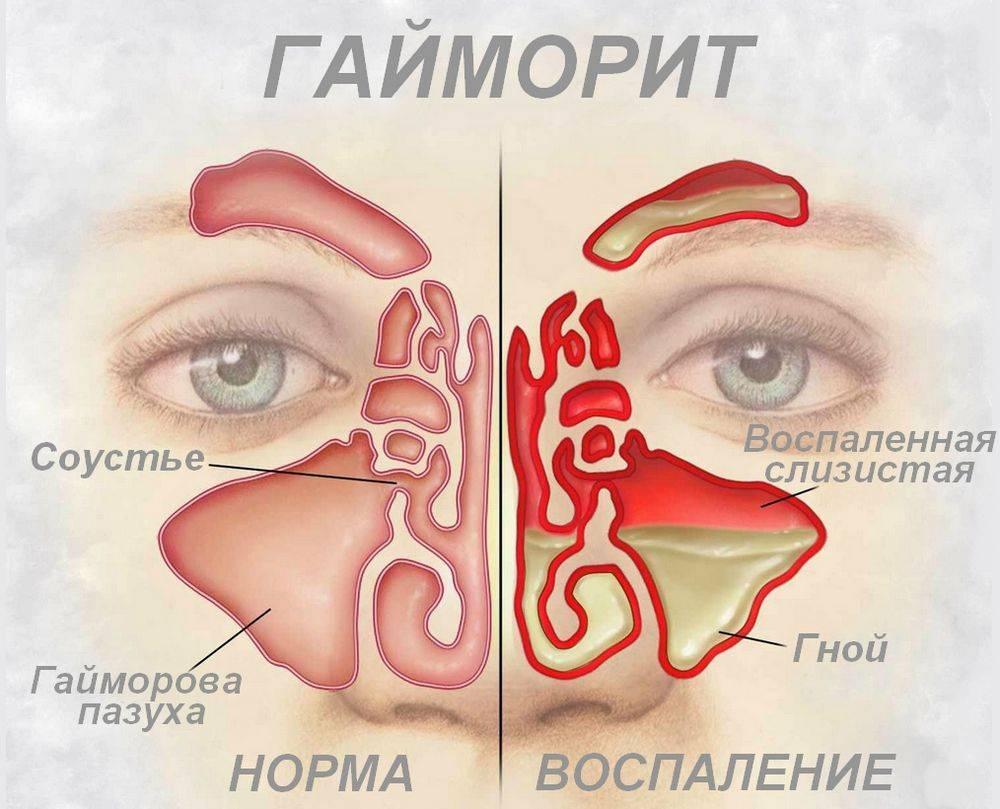 виды гайморита симптомы и лечение