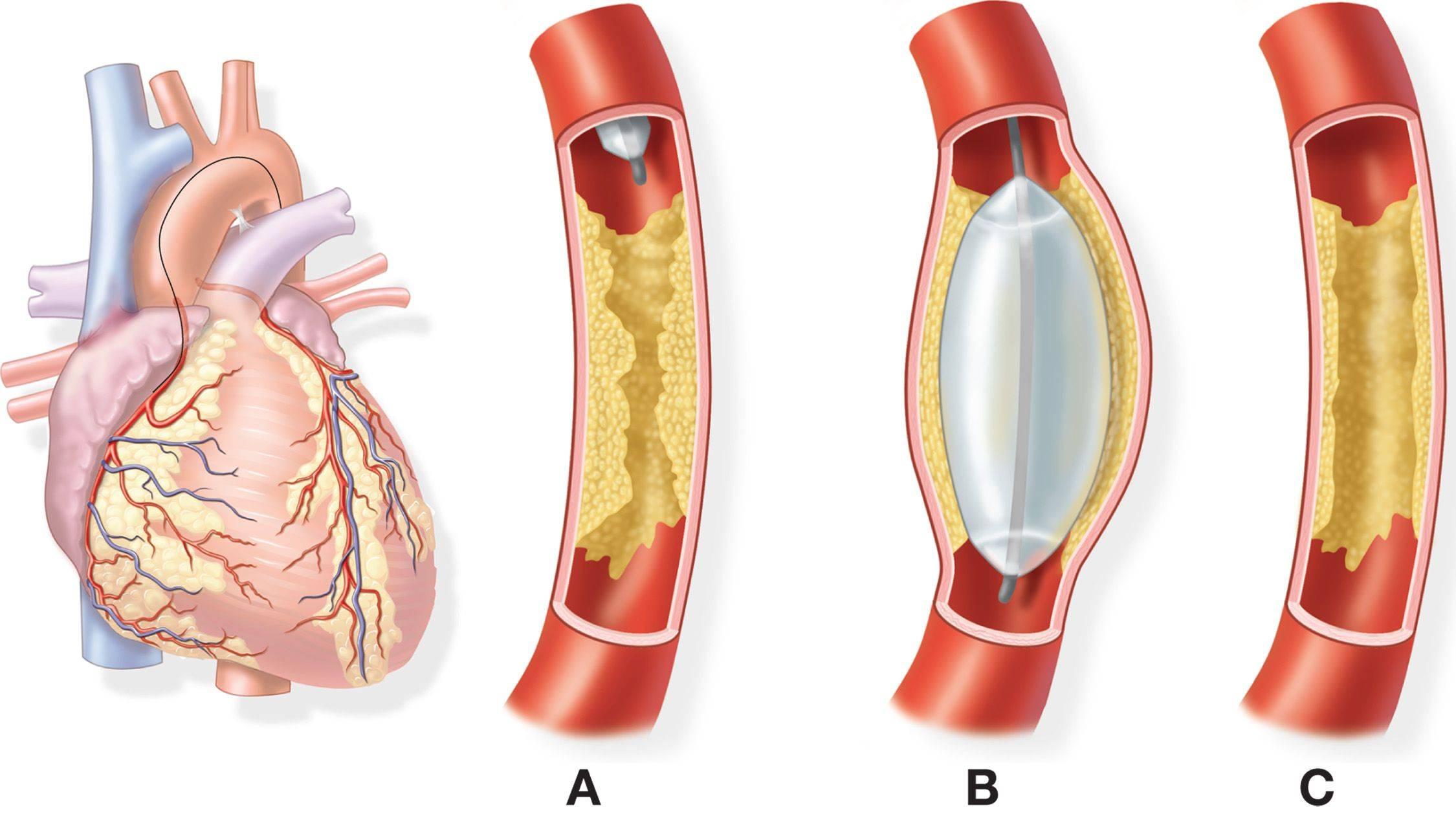 транслюминальная баллонная ангиопластика