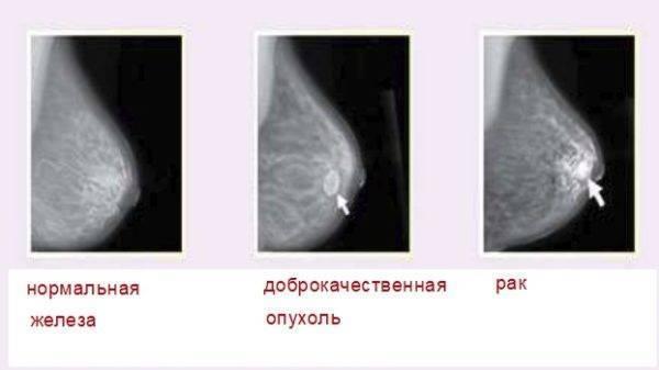 Аденома молочной железы — лечение, причины, виды