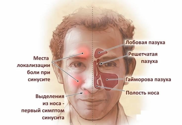 Из-за чего могут болеть пазухи носа