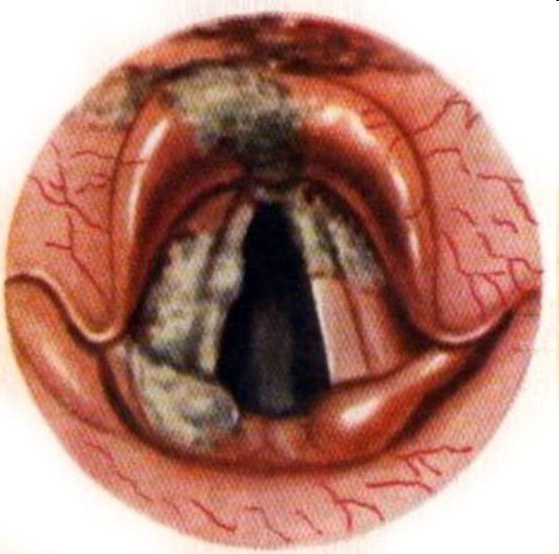 Острый катаральный ларингит