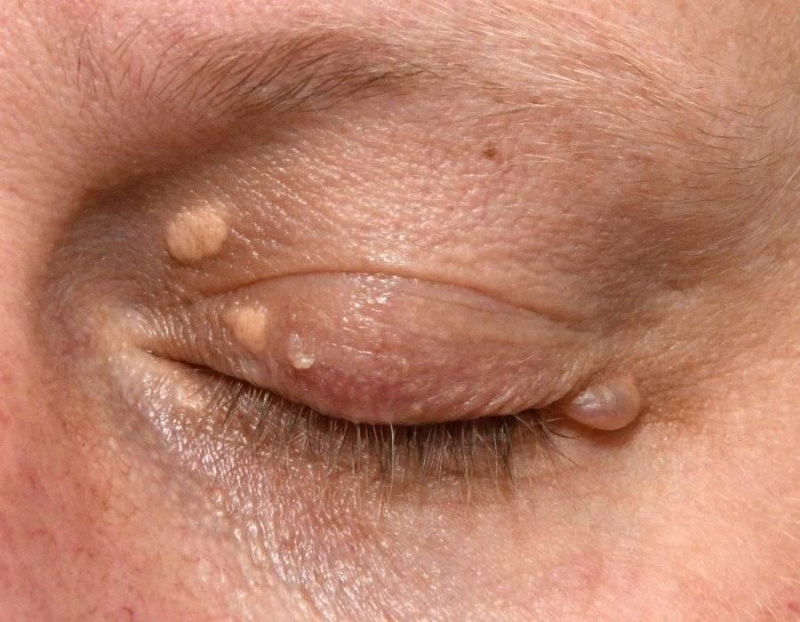 желтые пятна на веках глаз лечение