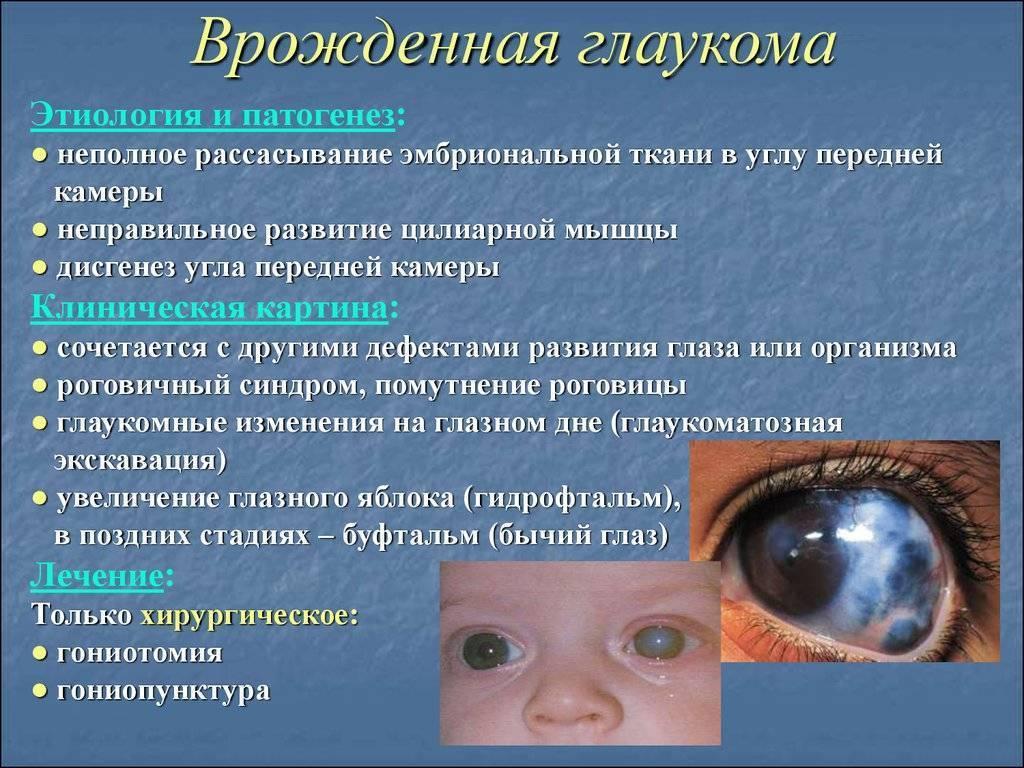 глаукома у детей симптомы