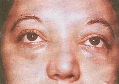 лечение трихинеллеза у человека