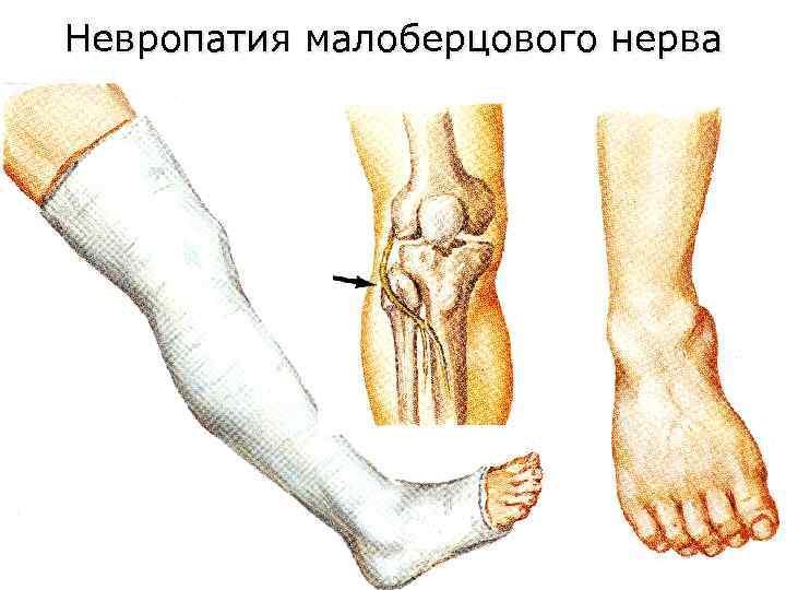 Полинейропатия верхних и нижних конечностей