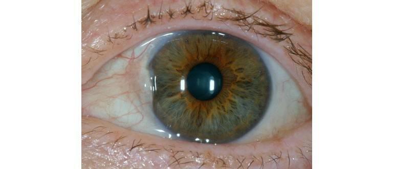 Прозрачный пузырек на глазу и болит
