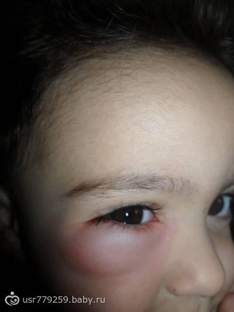 Что делать, если отек глаз у ребенка после сна?