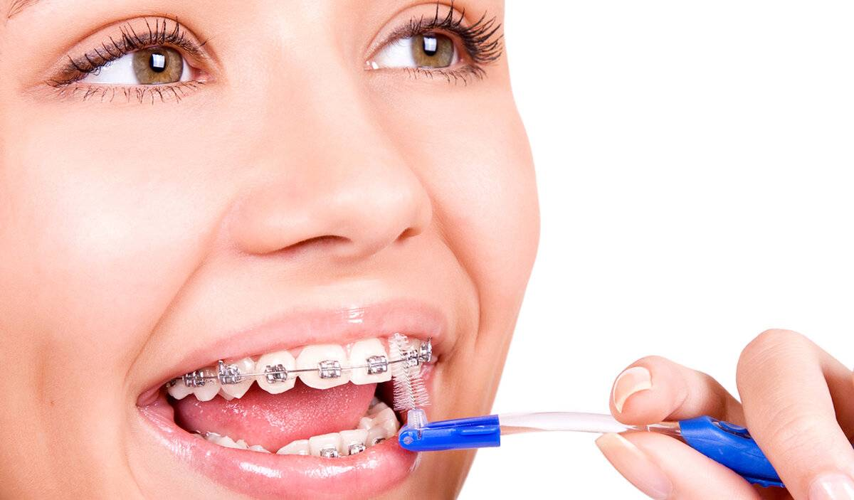 Ортодонтическое лечение. когда ставить брекеты подростку?