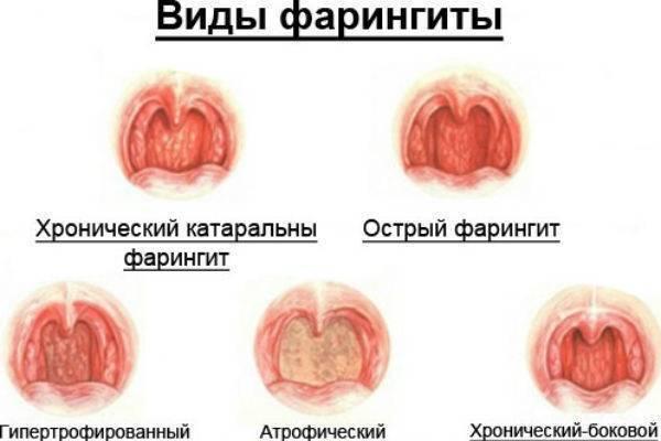 Фарингит – народное лечение