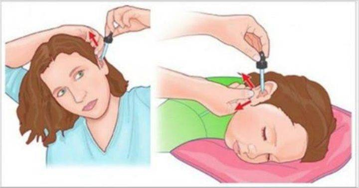 как правильно закапывать нос