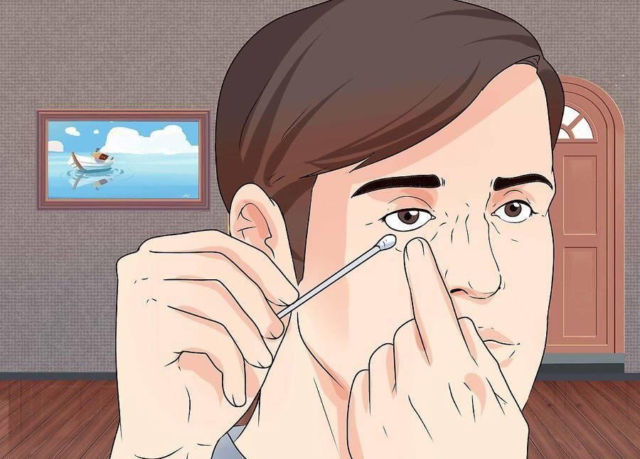 Ощущаете инородное тело в глазу, но ничего нет?