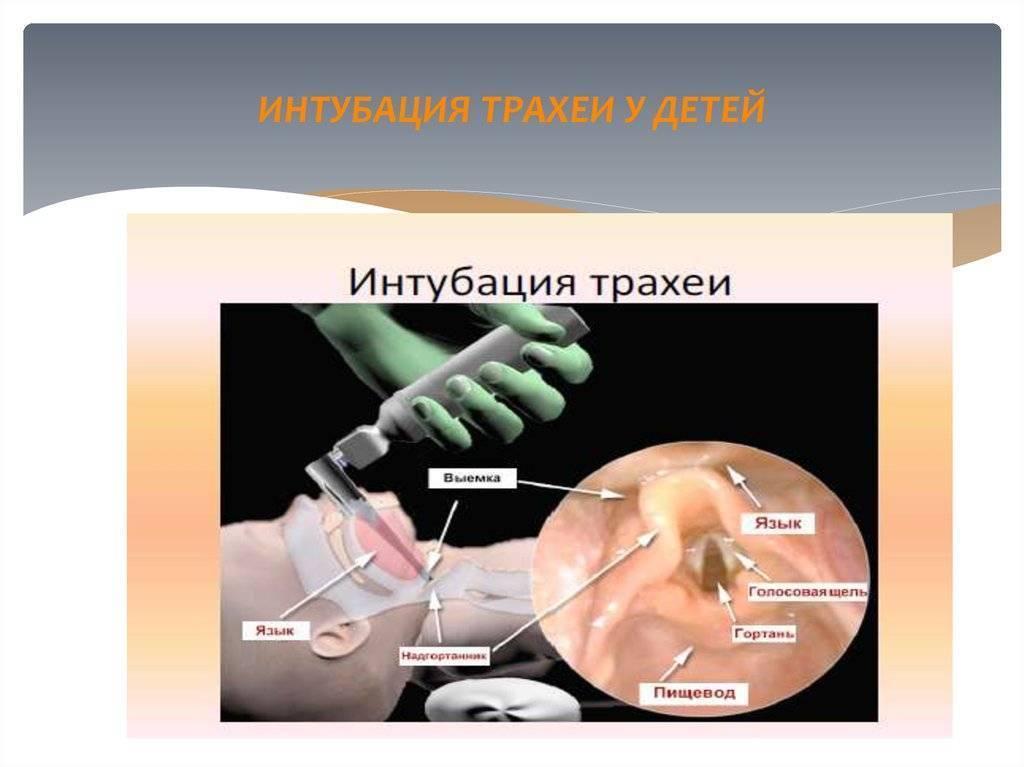 Интубация трахеи — википедия с видео // wiki 2