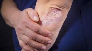 как снять обострение псориаза