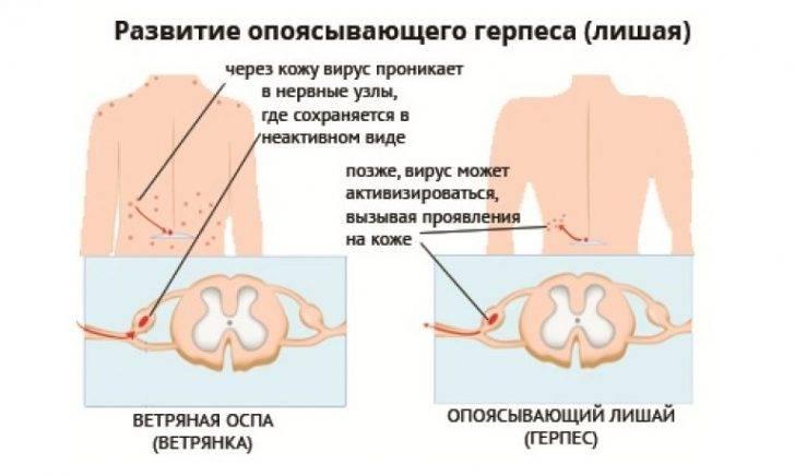 Симптомы и лечение поясничного герпеса
