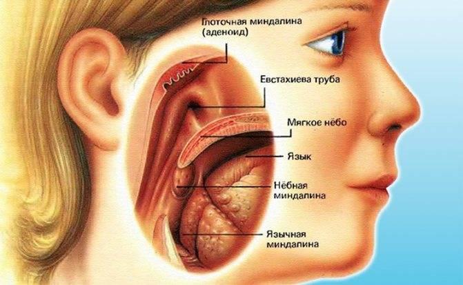 Почему болит корень языка при глотании, и как избавиться от боли?