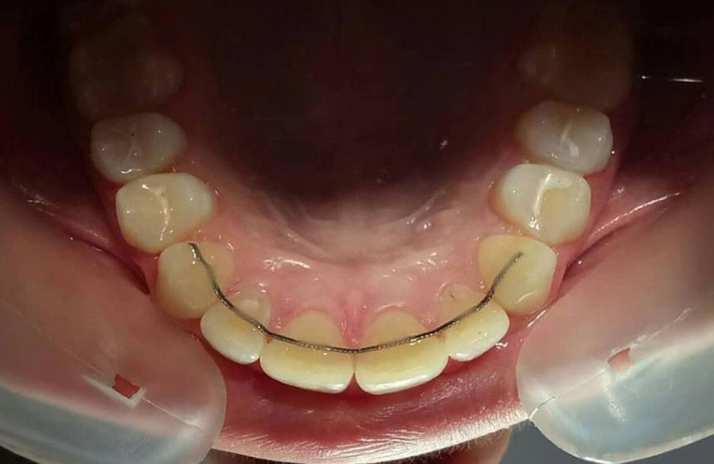 После снятия брекетов зубы искривились что делать