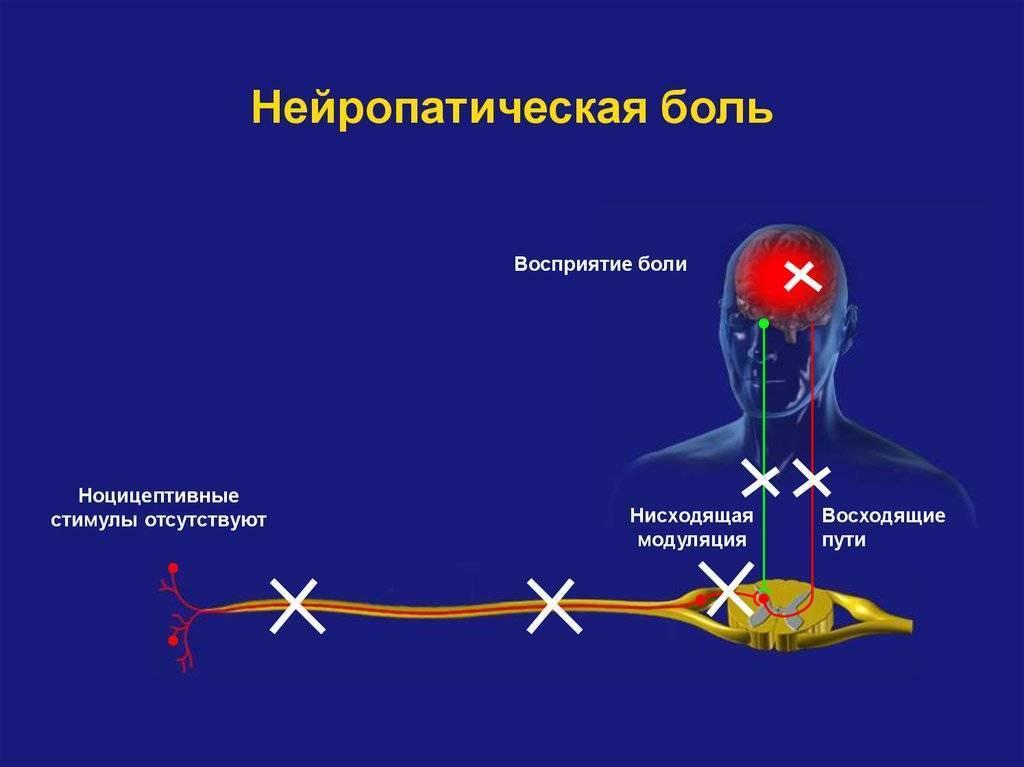 нейропатическая боль лечение