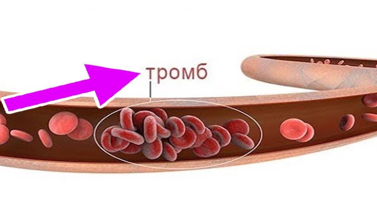 Роль и механизм действия кураги на процесс снижения холестерина