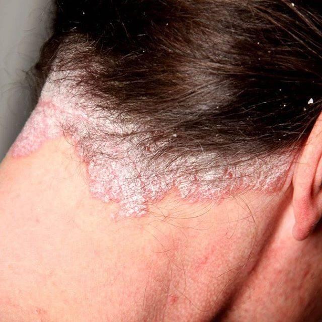 дерматит на голове у взрослых