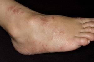 Дерматит на ногах – причины и лечение всех видов недуга
