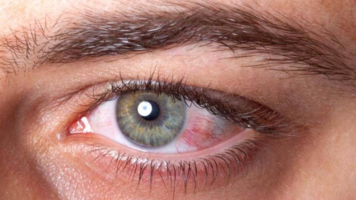 Разрыв сетчатки глаза: симптомы, причины, лечение и операция