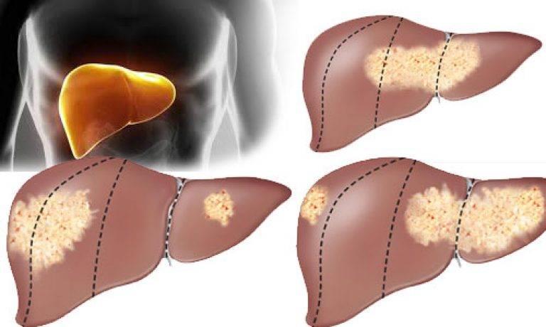 Как образуются метастазы в печени, какое лечение проводится и каков прогноз жизни при этой болезни?