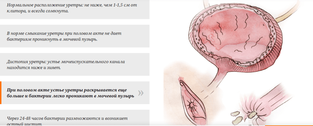 Цистит после интимной близости лечение | советы доктора